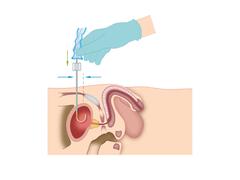 Anlage und Pflege eines Dauerkatheters